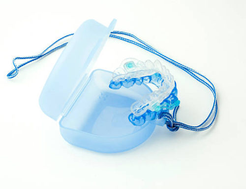 Prodotti antirussamento: cerotti e dilatatori nasali, bite, spray, reti e cuscini per non russare